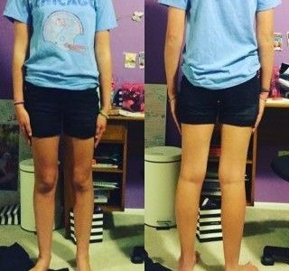 Dress Codes Need to be Changed
